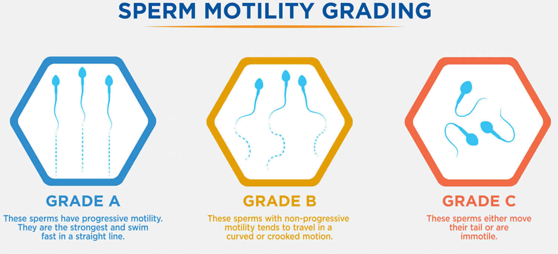 Sperm motility definition, test & low sperm motility treatment