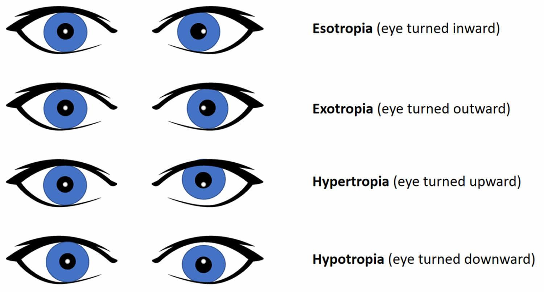 Abnormal Hirschberg corneal reflex test