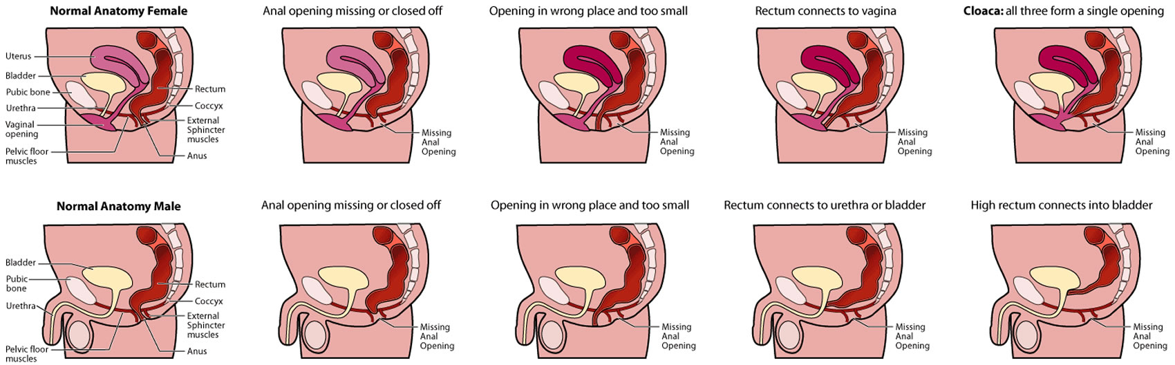 Anorectal malformation types