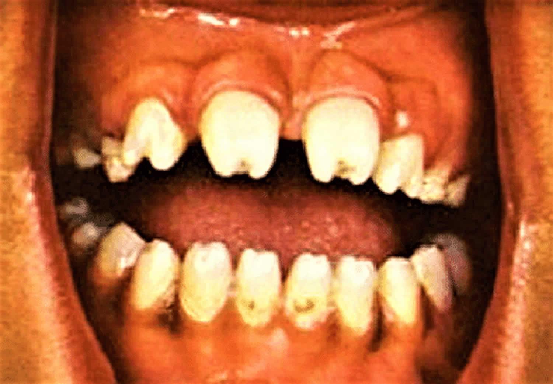 hutchinson teeth