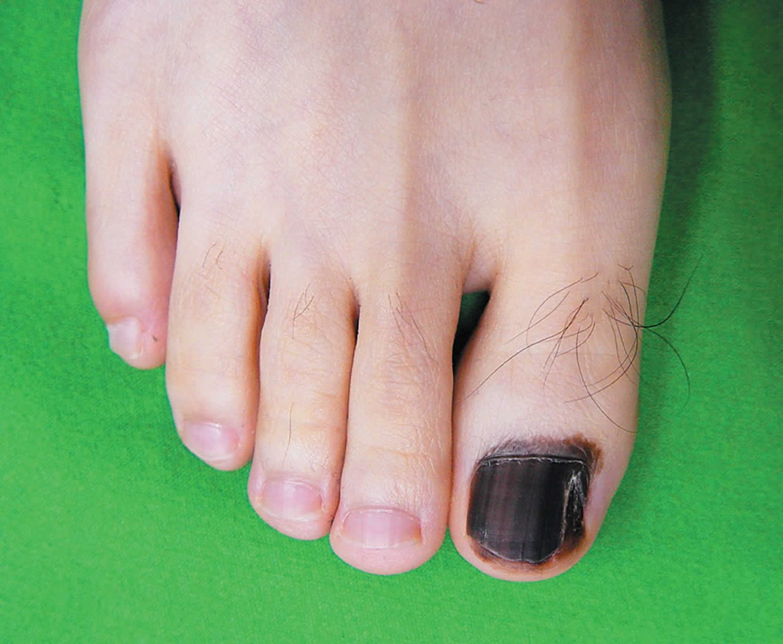 hutchinson's sign toenail