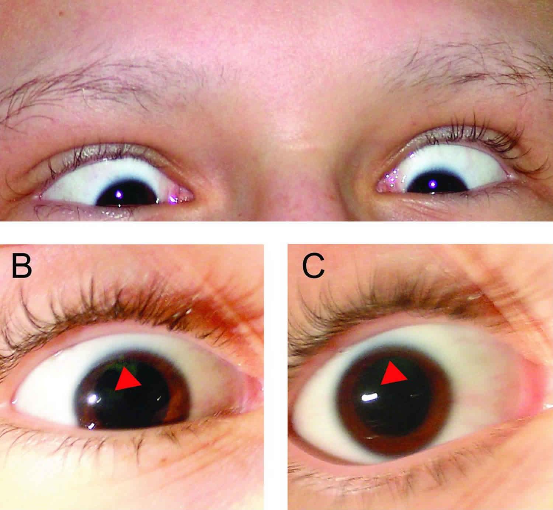 parinaud syndrome