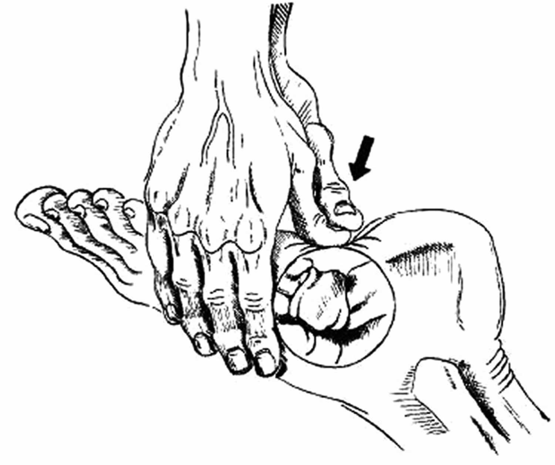 Cuboid squeeze technique