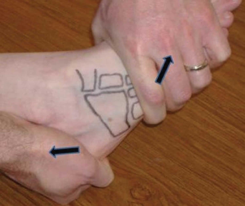 Midtarsal adduction test