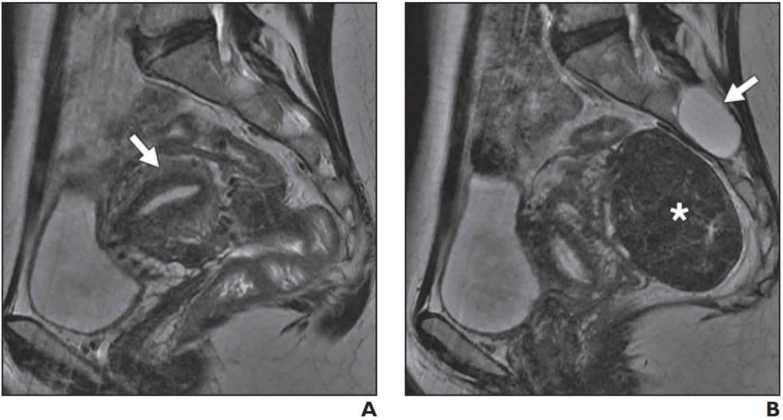 Uterine incarceration MRI