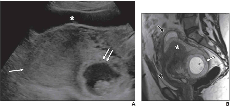 incarcerated uterus ultrasound