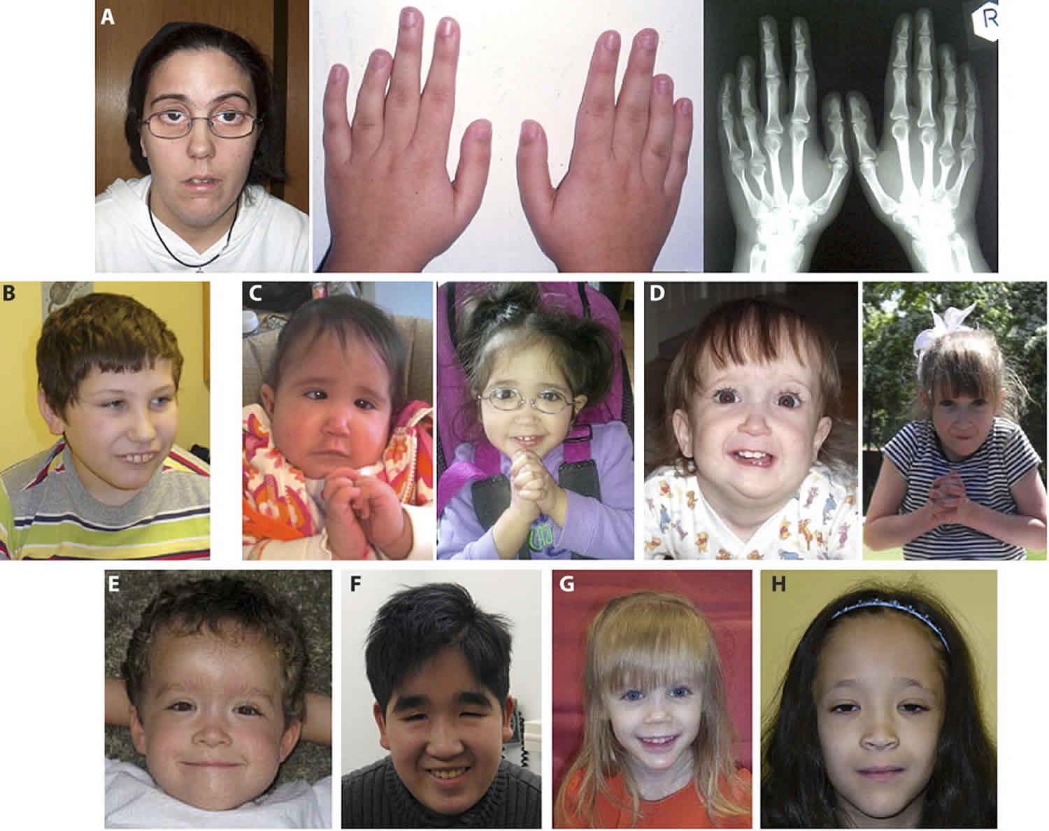 microdeletion syndrome