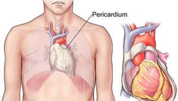 pericardiectomy