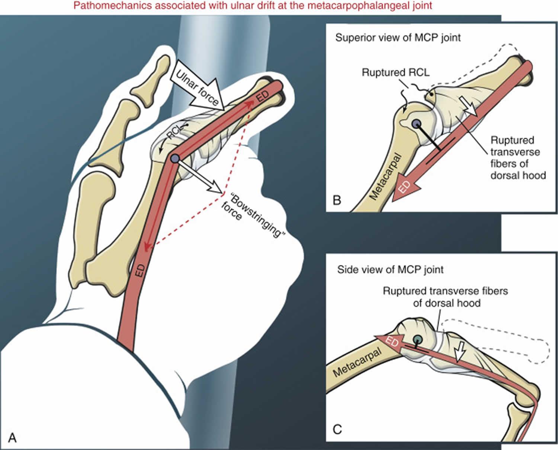 ulnar drift fingers