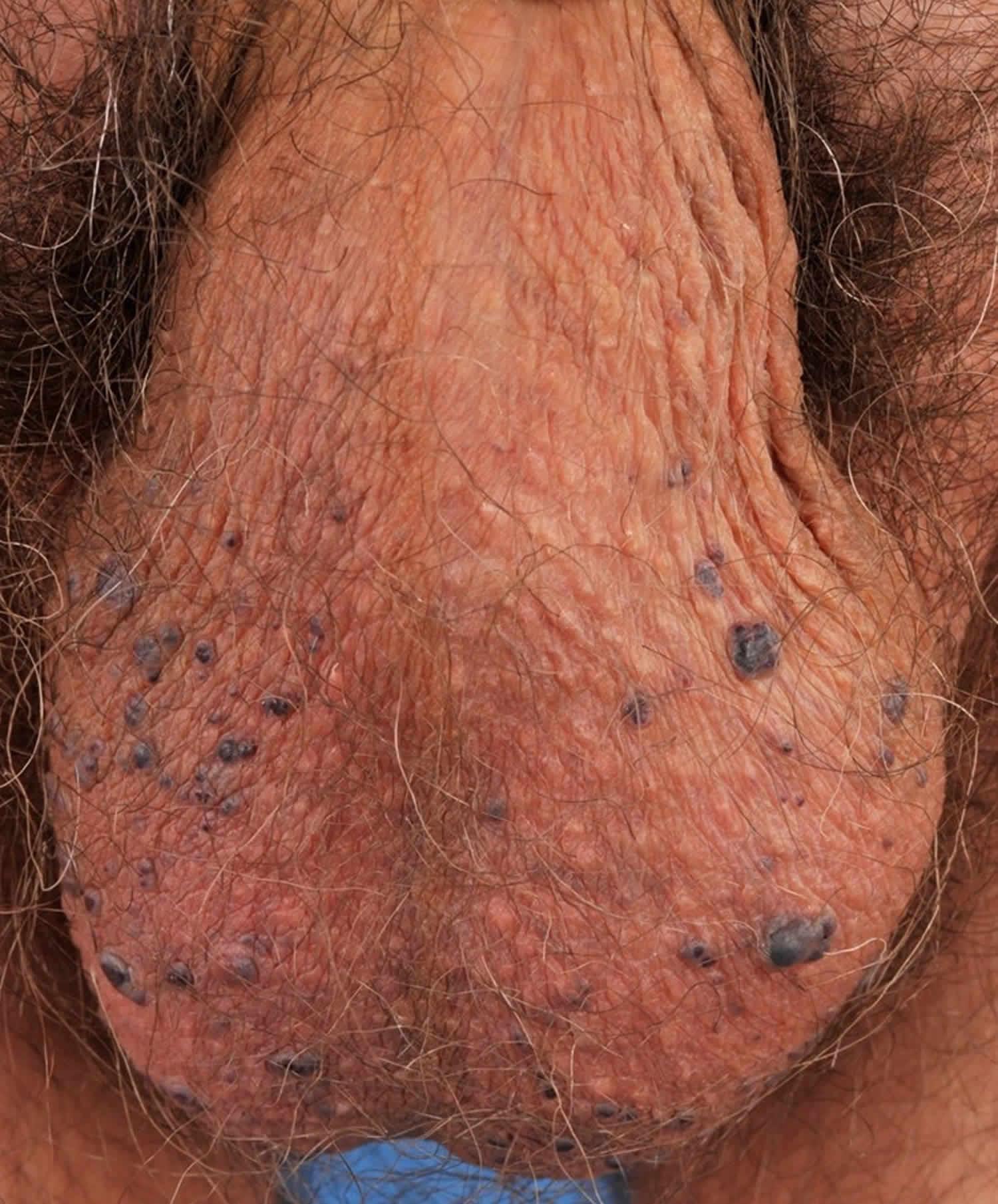 Angiokeratoma of Fordyce
