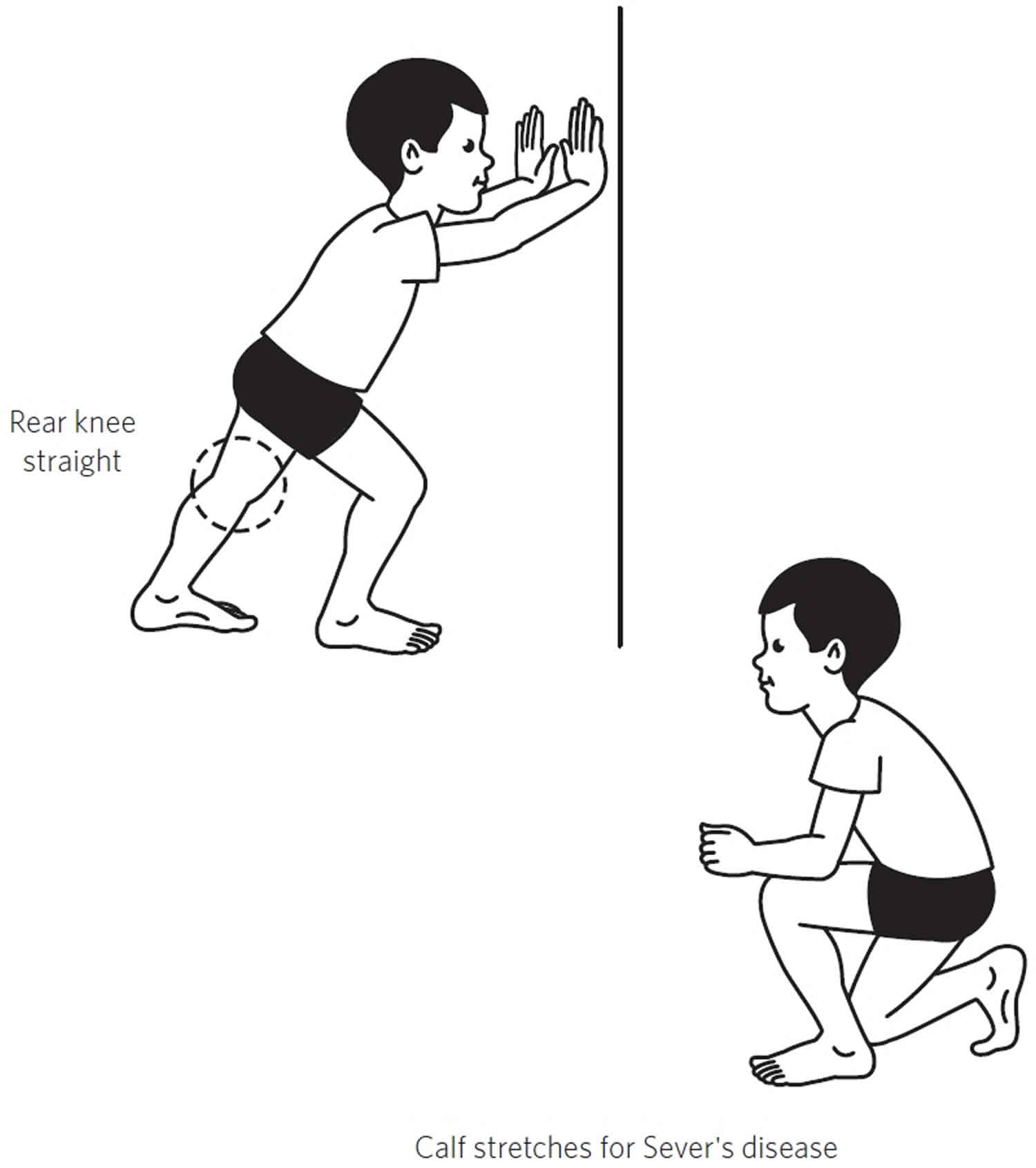Sever's disease stretching exercises