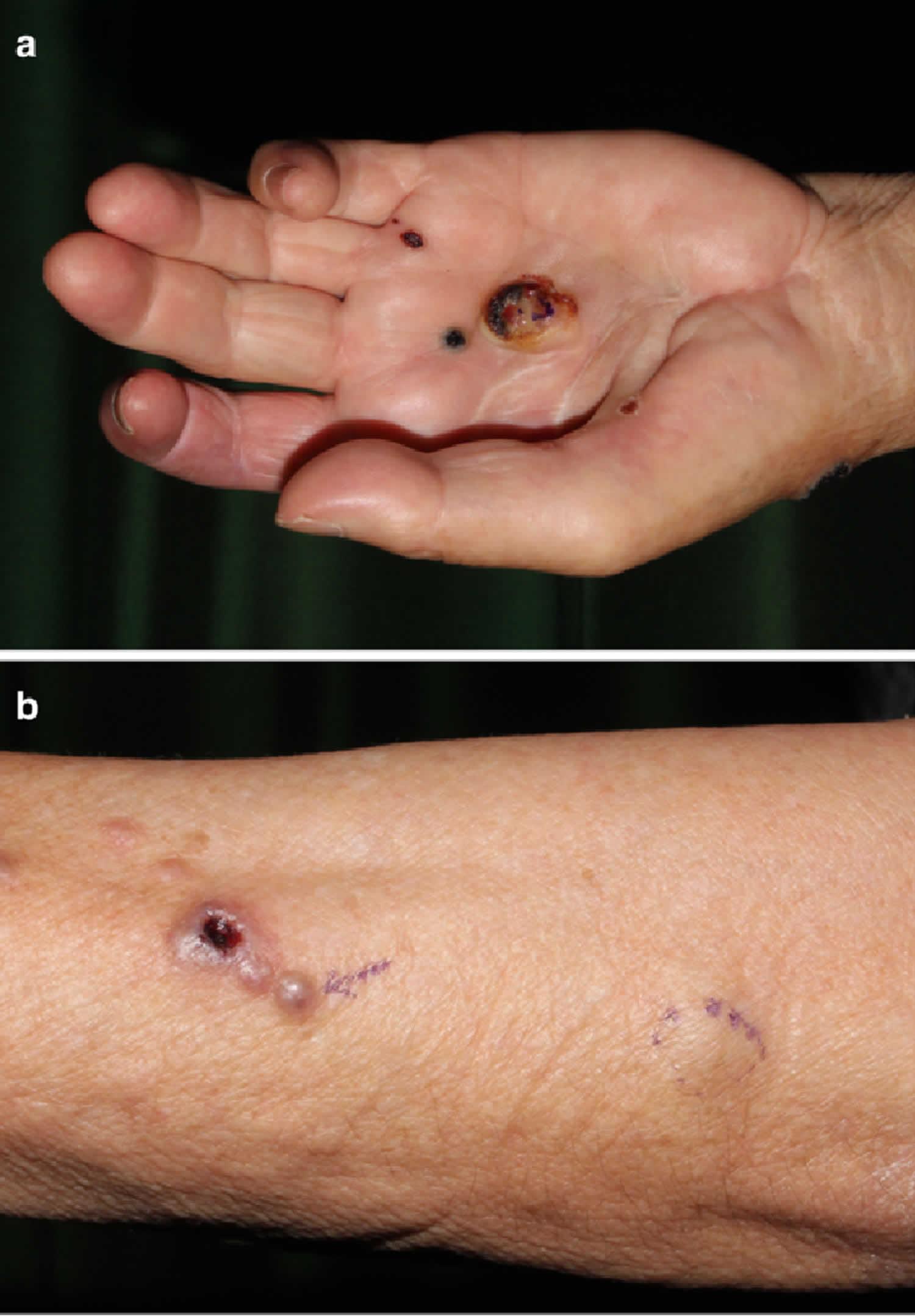 epithelioid sarcoma
