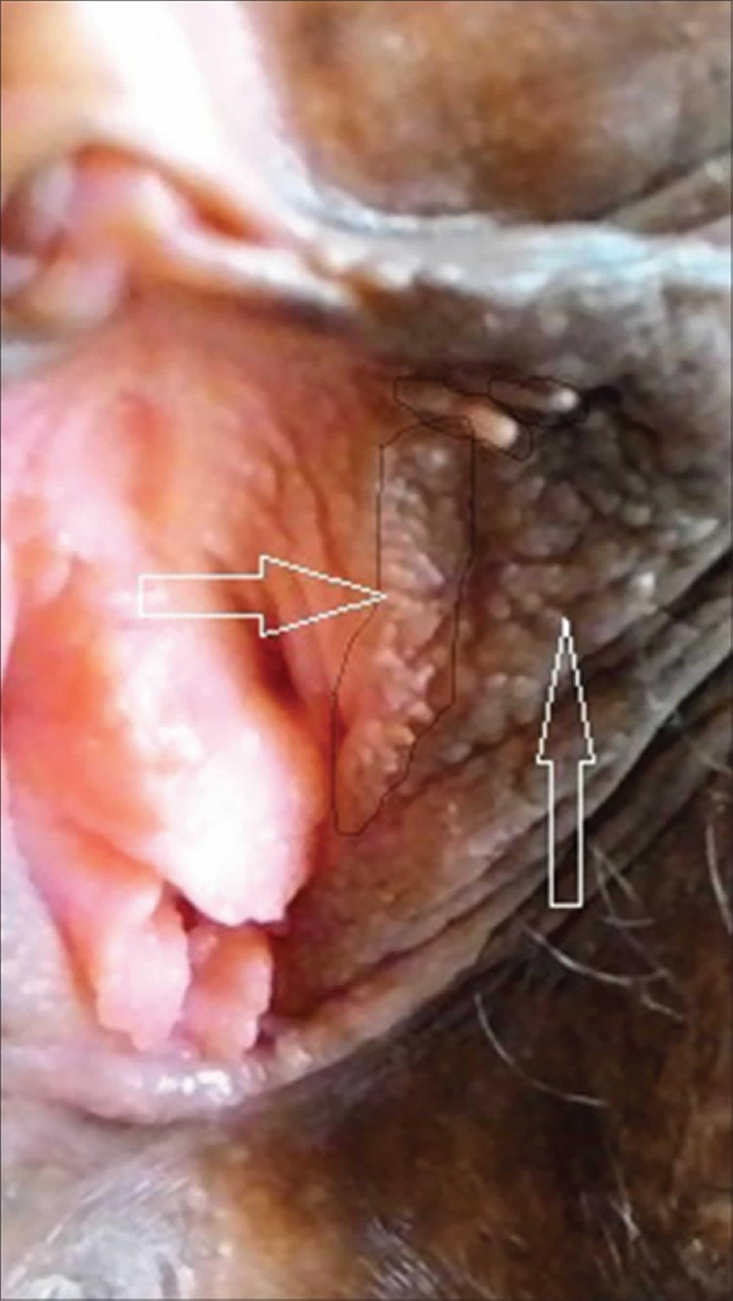 vestibular papillomatosis is normal)