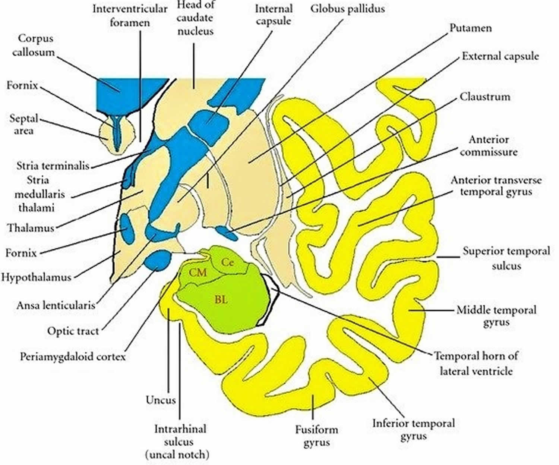 Coronal section through the temporal lobe