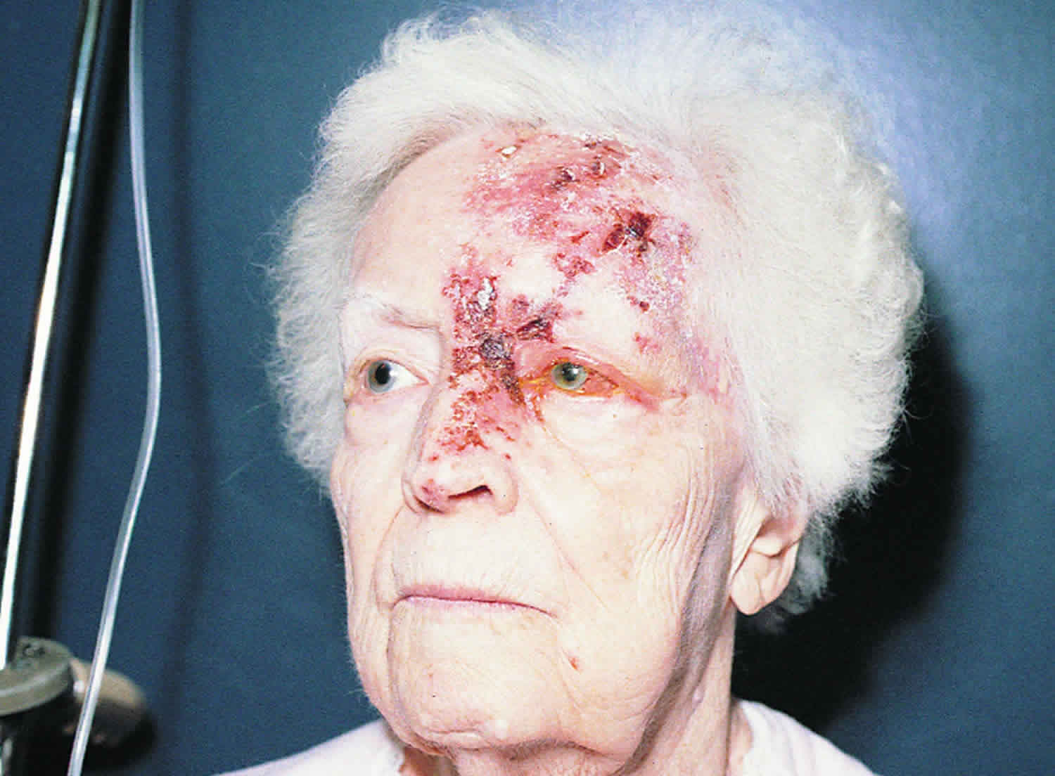 ophthalmic herpes zoster