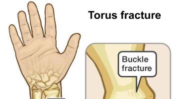 buckle-fracture