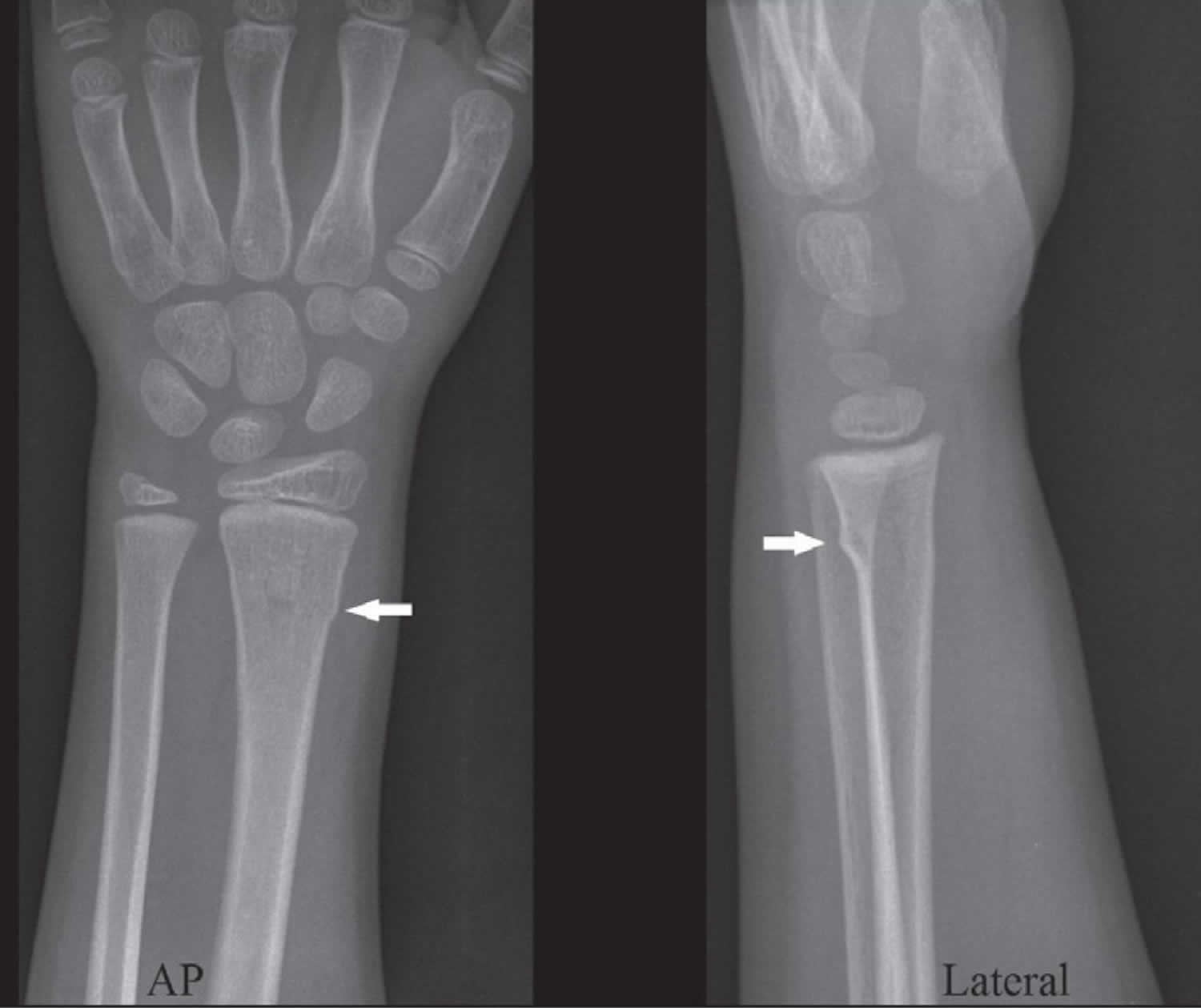 Buckle fracture of the distal radius