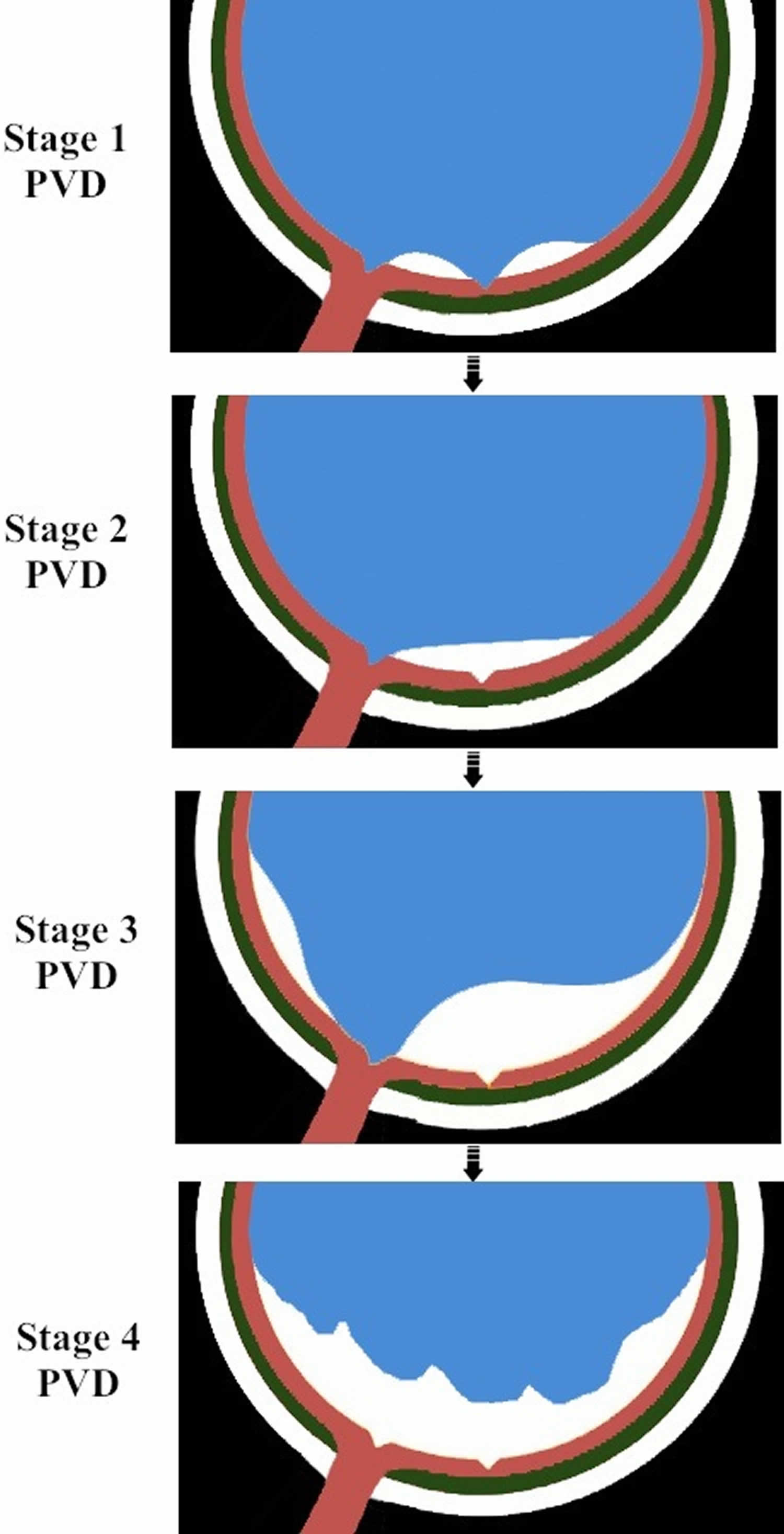 Evolution of normal posterior vitreous detachment