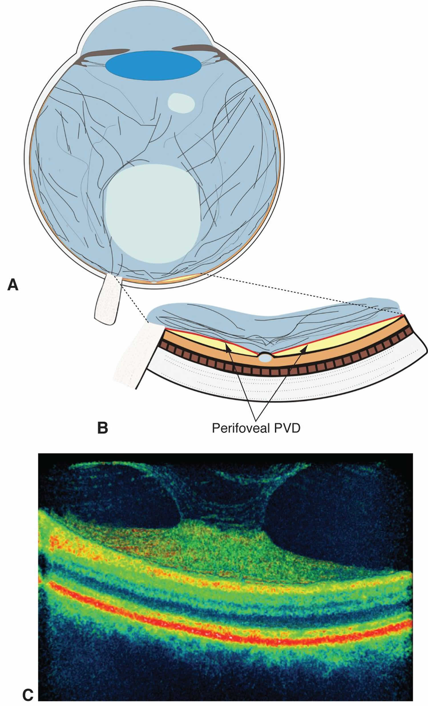 Perifoveal posterior vitreous detachment