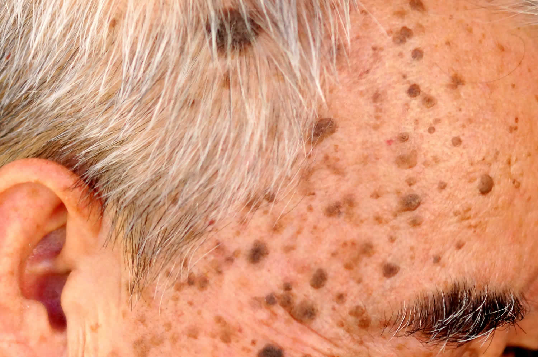 Seborrhoeic keratosis face