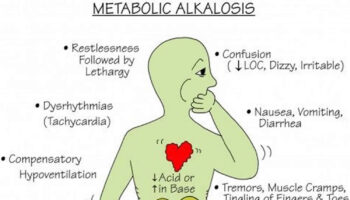 hypochloremic metabolic alkalosis