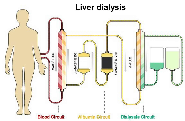 liver dialysis