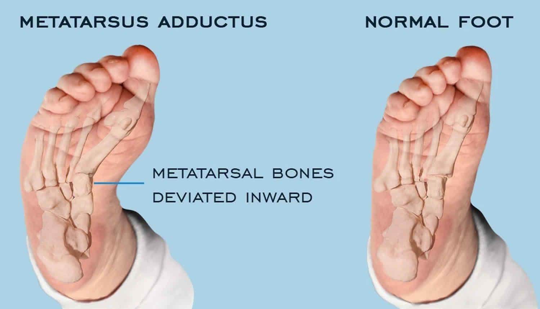 metatarsus-adductus