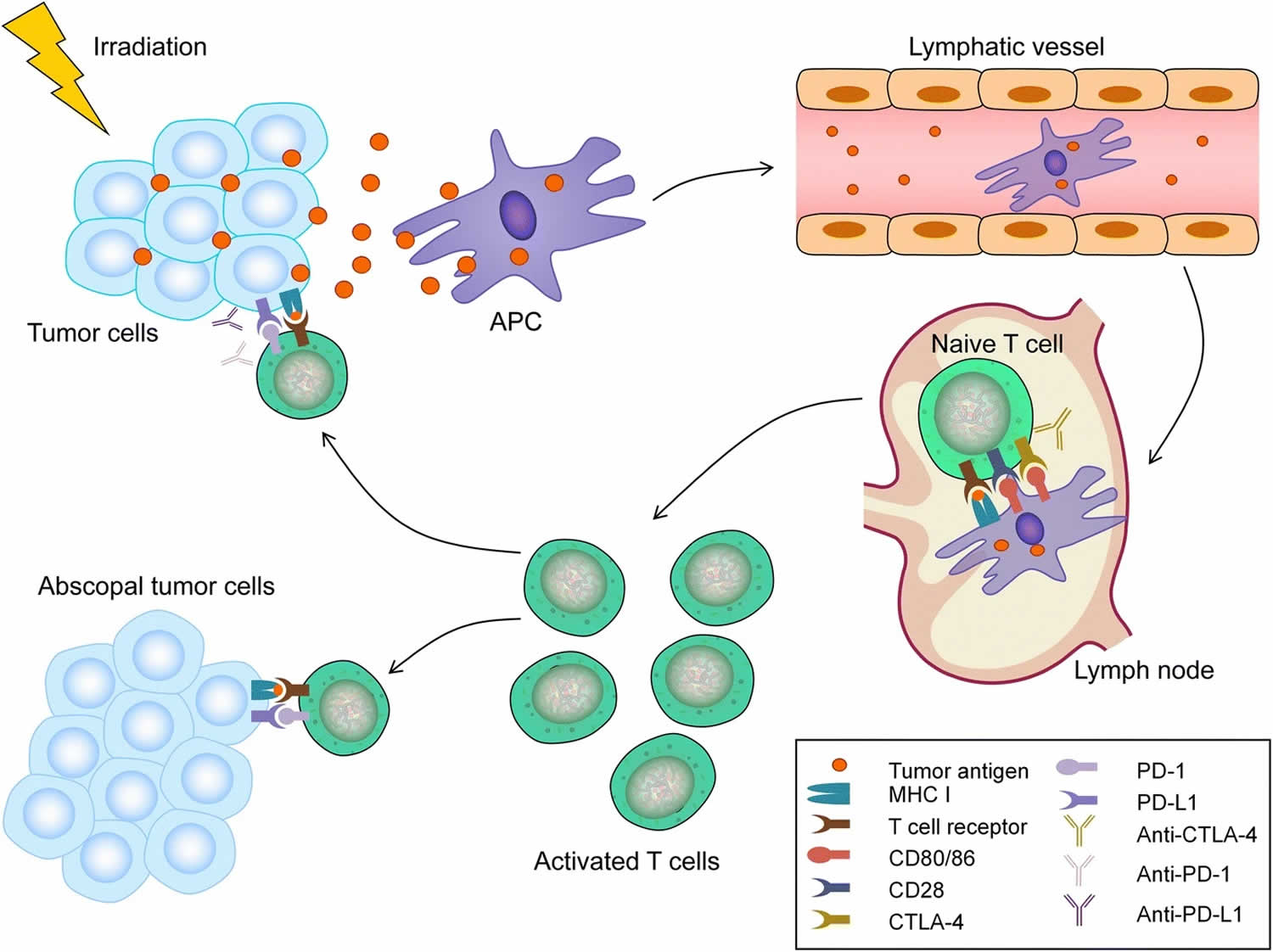 Mechanism of abscopal effect radiotherapy