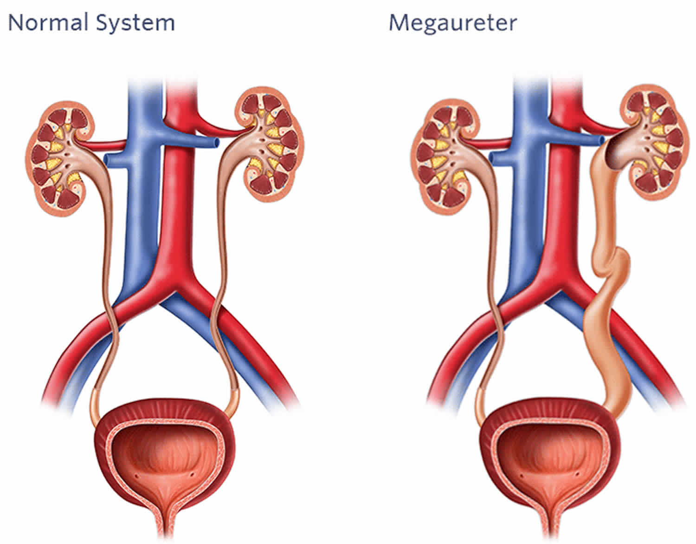 Megaureter definition, types, causes, symptoms, diagnosis, treatment & prognosis