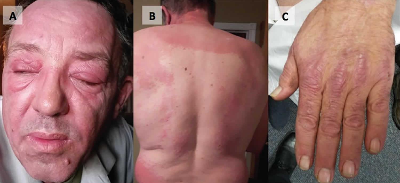 dermatopolymyositis