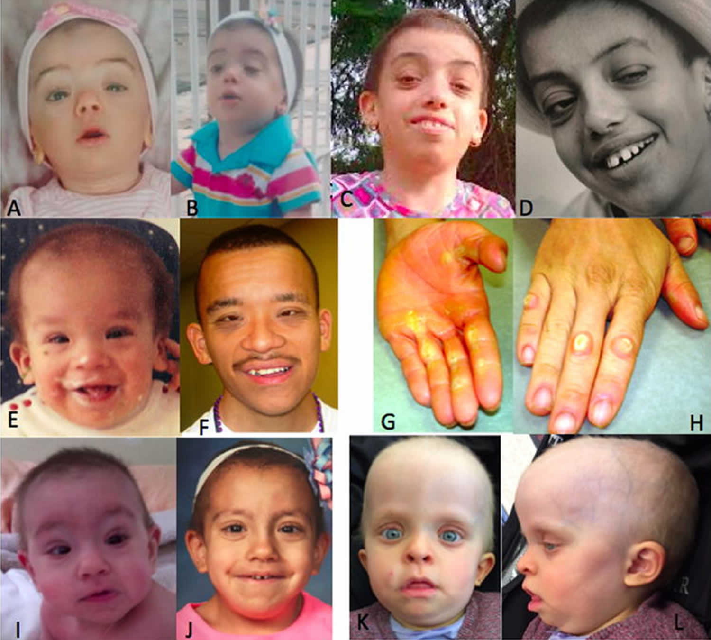 Costello syndrome