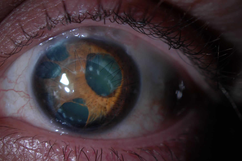 Progressive Iris Atrophy