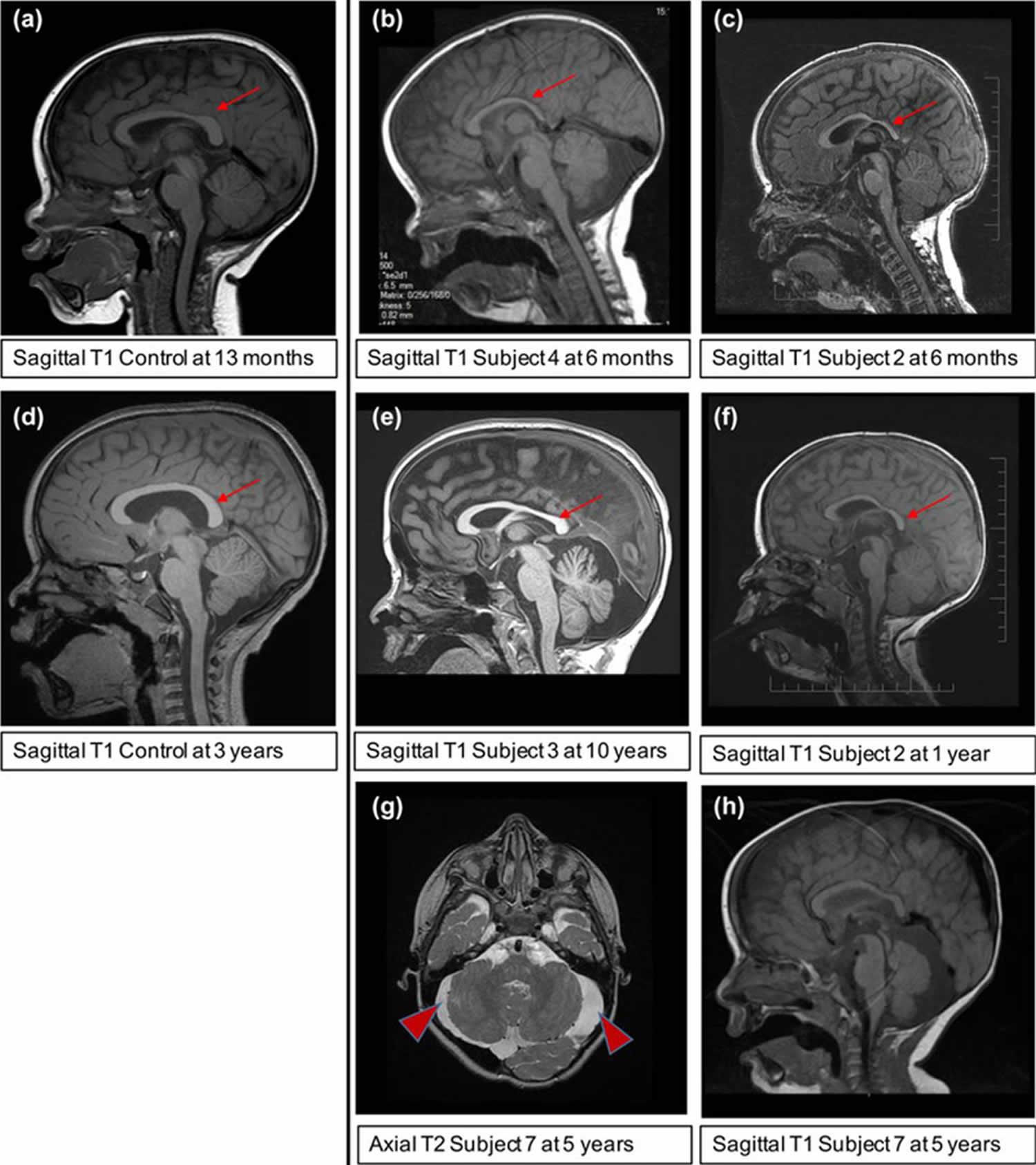 Xia Gibbs syndrome MRI scans