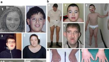 Cohen syndrome