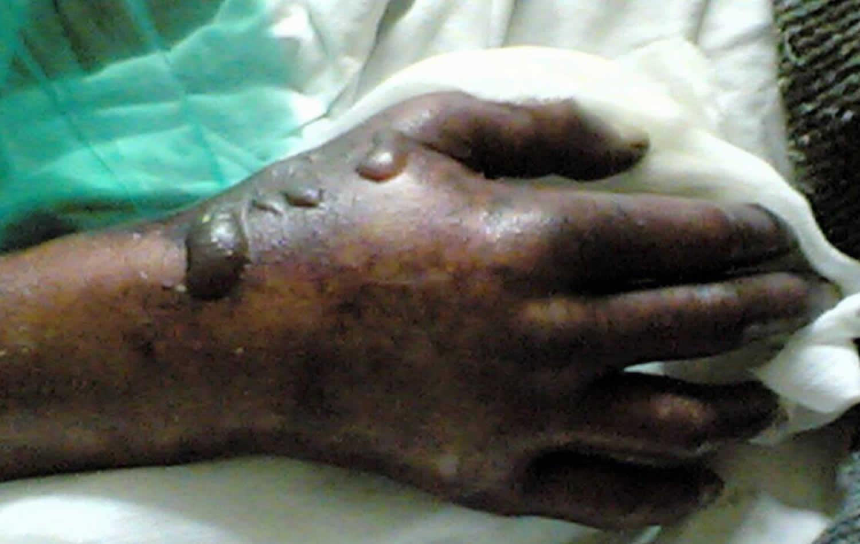 Purple glove syndrome