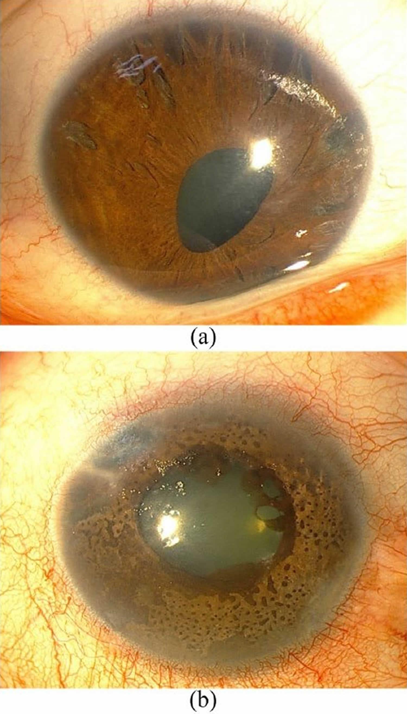 iridocorneal endothelial syndrome