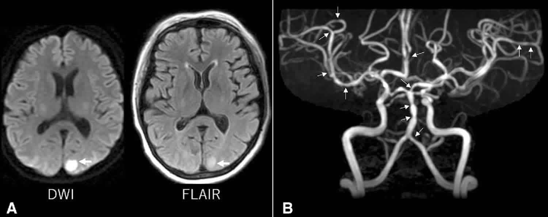 reversible cerebral vasoconstriction syndrome