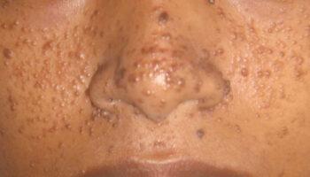 Adenoma sebaceum
