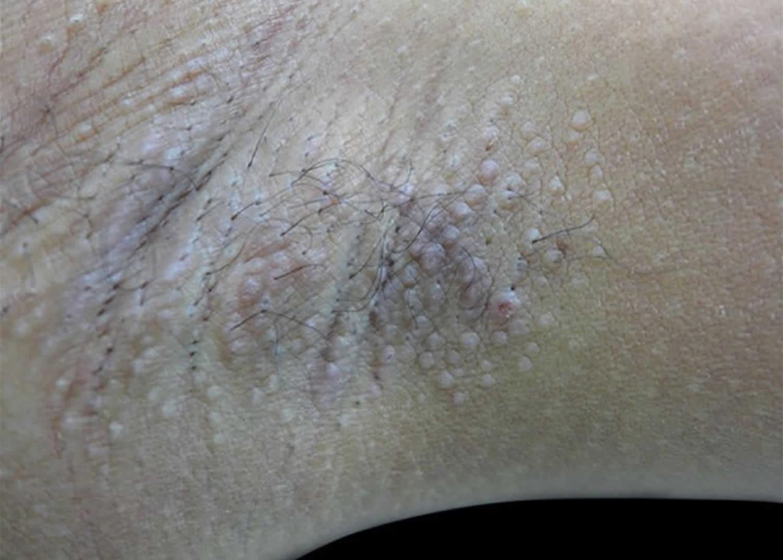 Fox-Fordyce disease