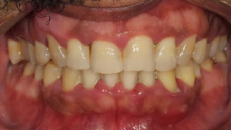 gingival papilloma causes