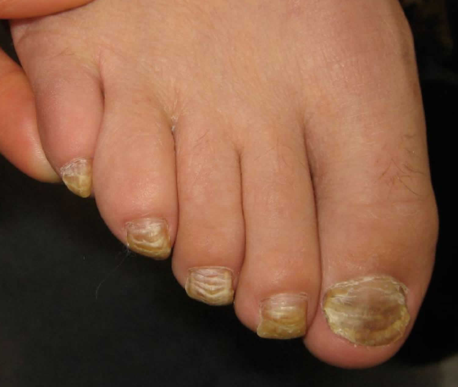 onychauxis nail disorder