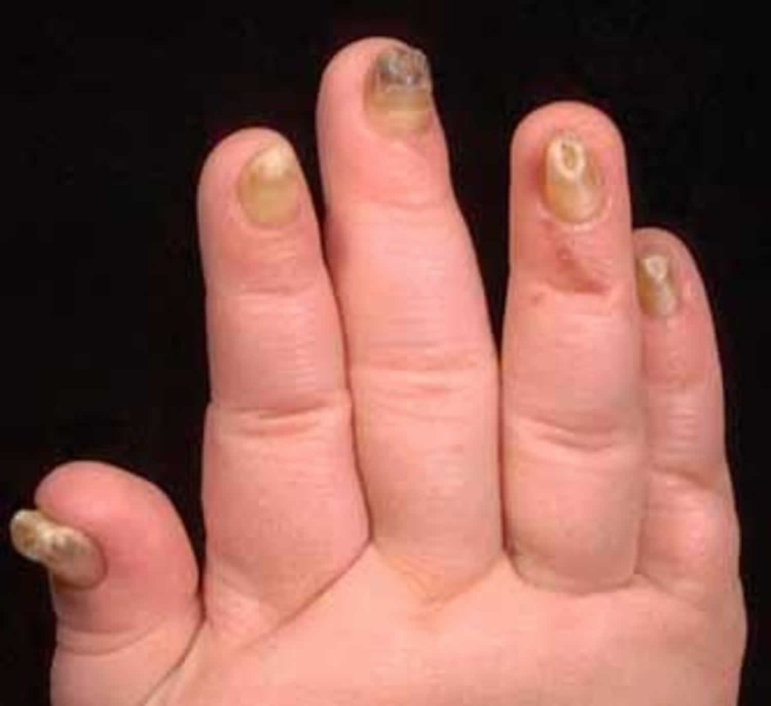 onychauxis nails