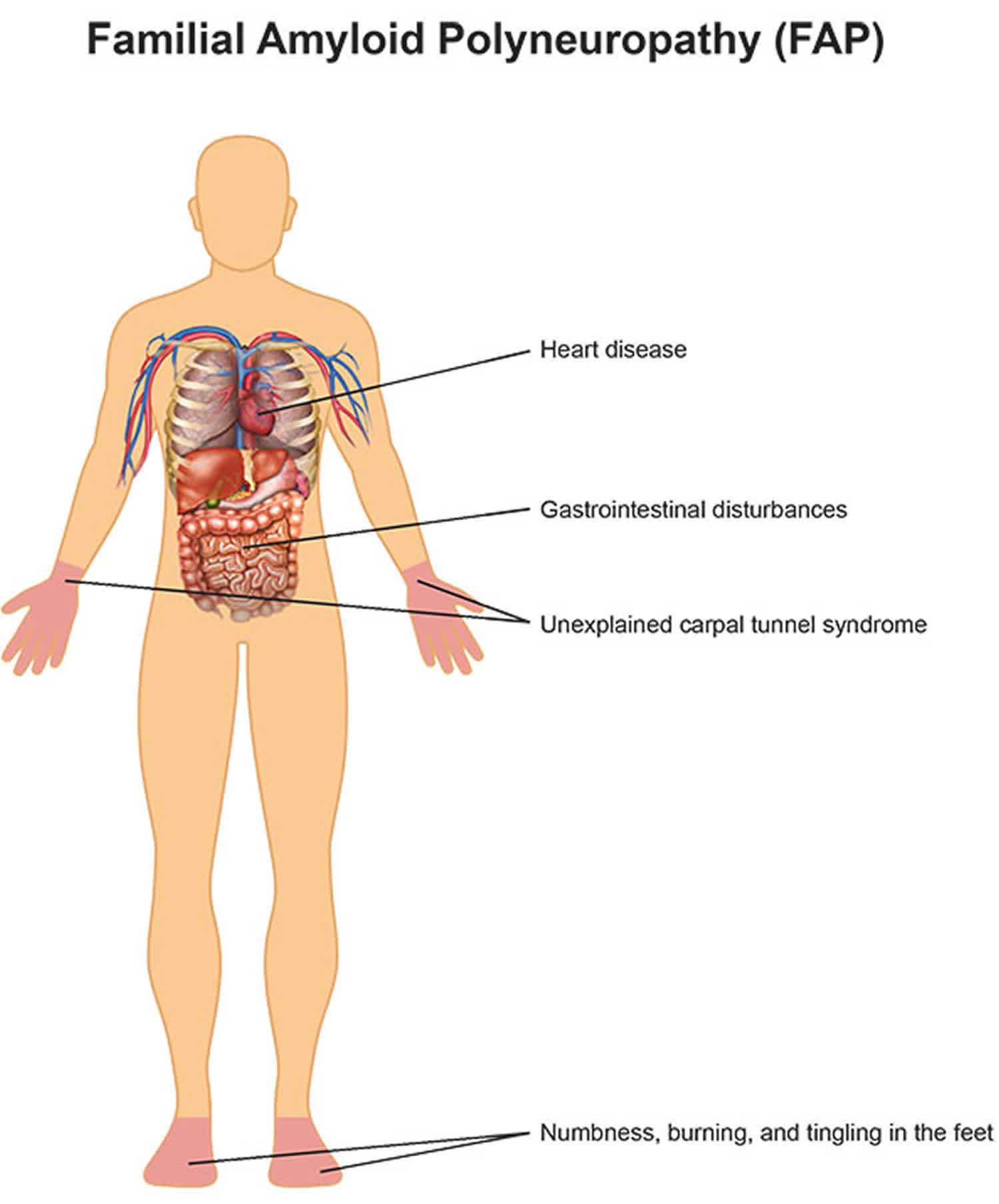 familial amyloid polyneuropathy